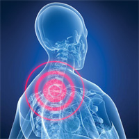 Neck pain - Chiropractor in Poole