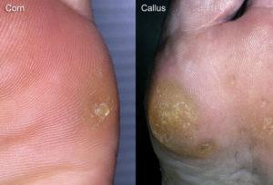 corn and callus