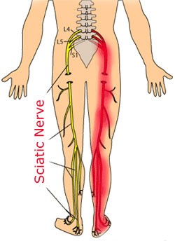 How does physiotherapy help sciatica?