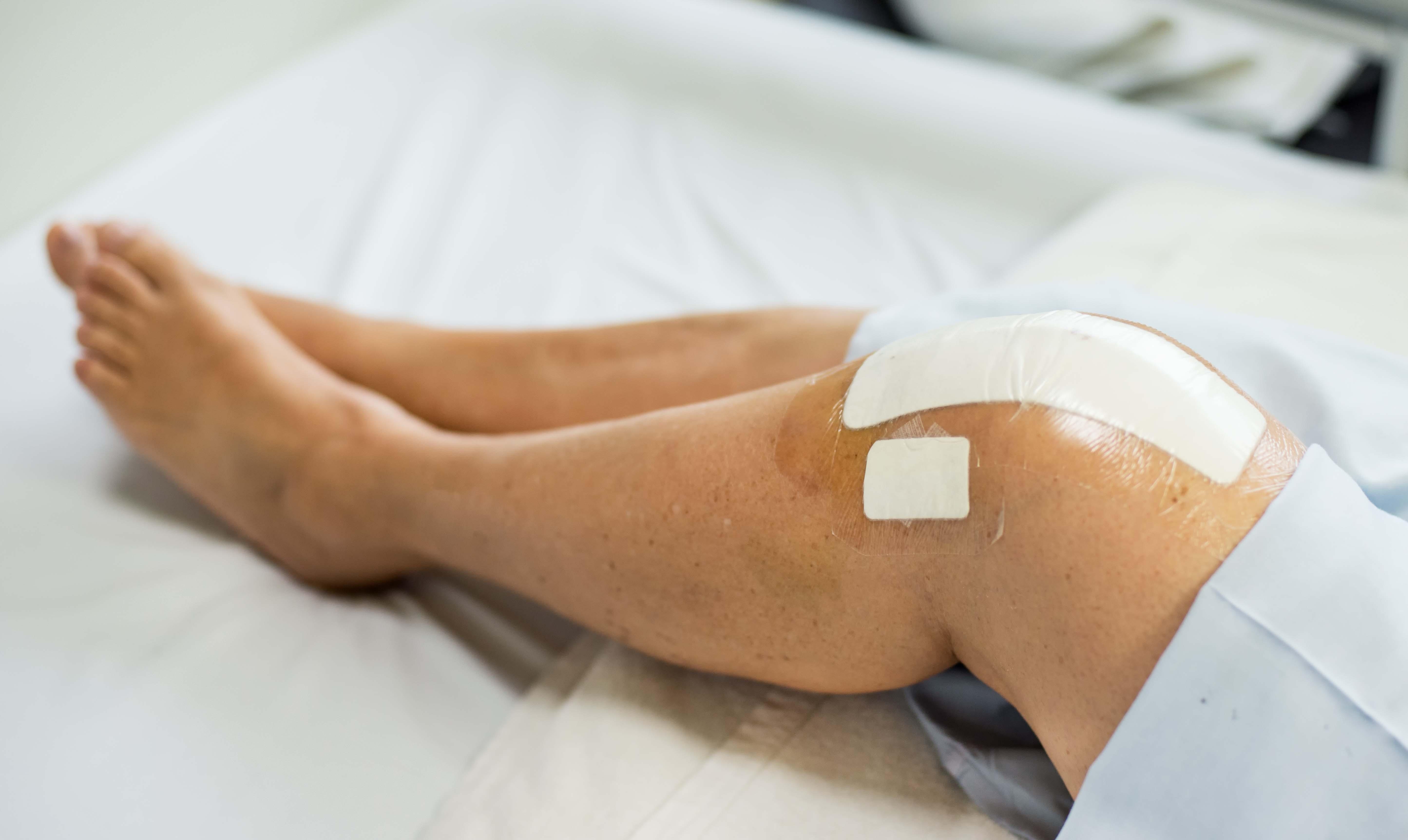 Knee operation, knee surgery