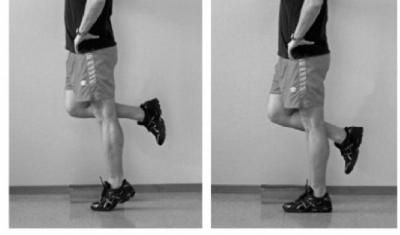 Insertional Achilles tendinosis