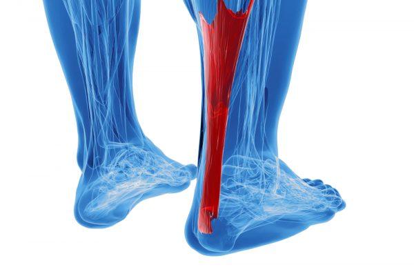 achilles tendonitis treatment